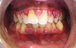 Avoid gum disease by doing regular dental checkup