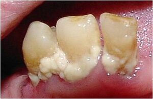 Regular dental checkup to avoid tooth plaque
