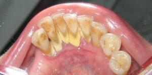 regular dental checkup to avoid tooth tartar