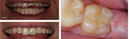 Tooth coloured restorative materials