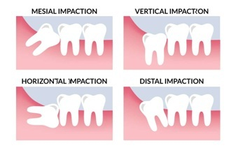 Tyeps of tooth Impaction