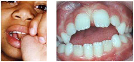 Dental Clinic Pune