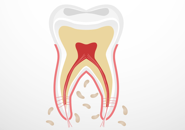 treatment for tooth sensitivity