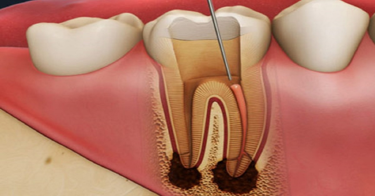 root canal treatment pune